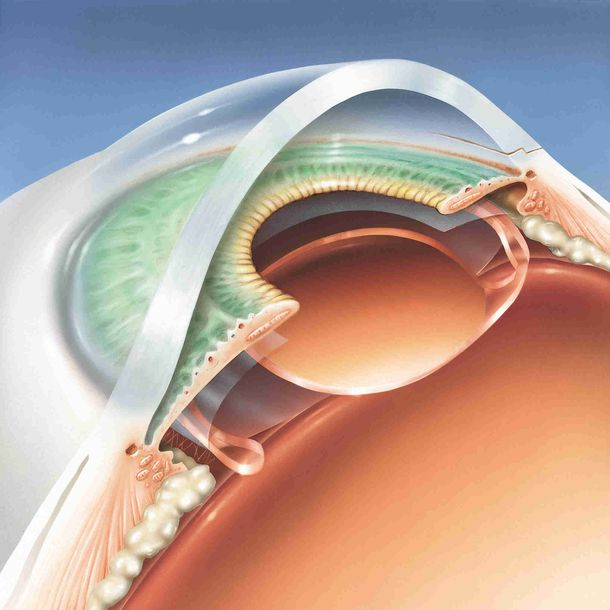 A 3-dimensional illustration of the structures of the eye