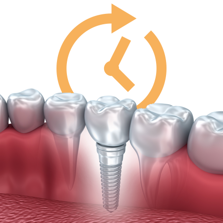 Single completed implant-supported restoration in jaw