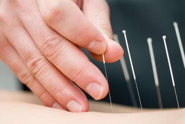 Hand inserting acupuncture needles into skin