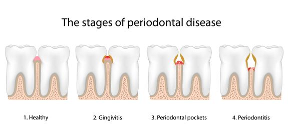 Illustrated stages of periodontal disease.