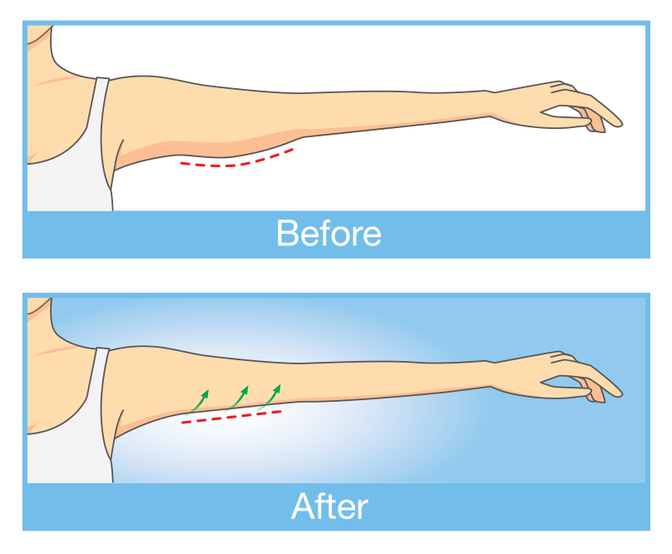 The upper arm before and after personalized brachioplasty.