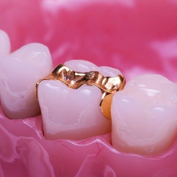 Tooth with gold filling