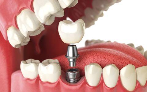 Dentist - Germantown - Jackson, TN - Trenton, TN - Elite