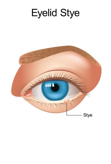 A stye on the eye.