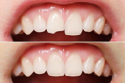 Before and after images of a dental bonding patient