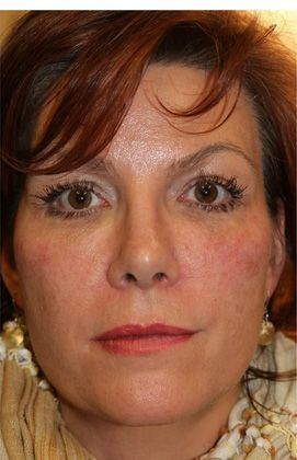 Dermal filler after photo