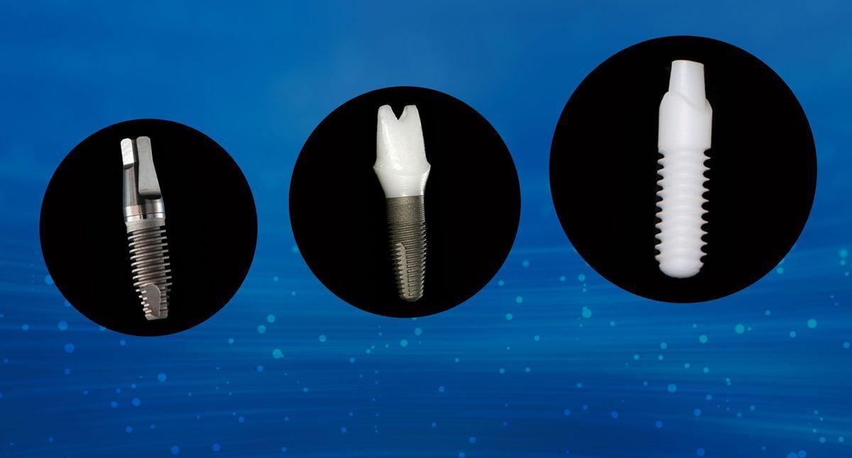Titanium and zirconia implants
