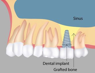 Diagram demonstrating how implants in the upper jaw fit below the sinus cavity.