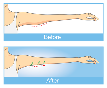 Illustration of before and after arm lift surgery