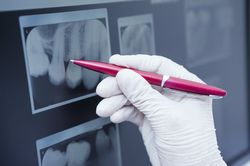 dentist marking x-ray