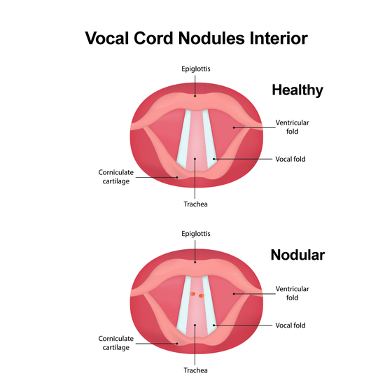 Illustration of interior healthy and nodular vocal cords.