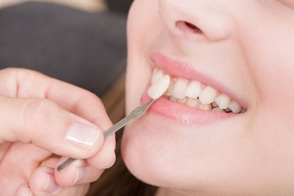 Porcelain veneer being placed on woman's tooth.