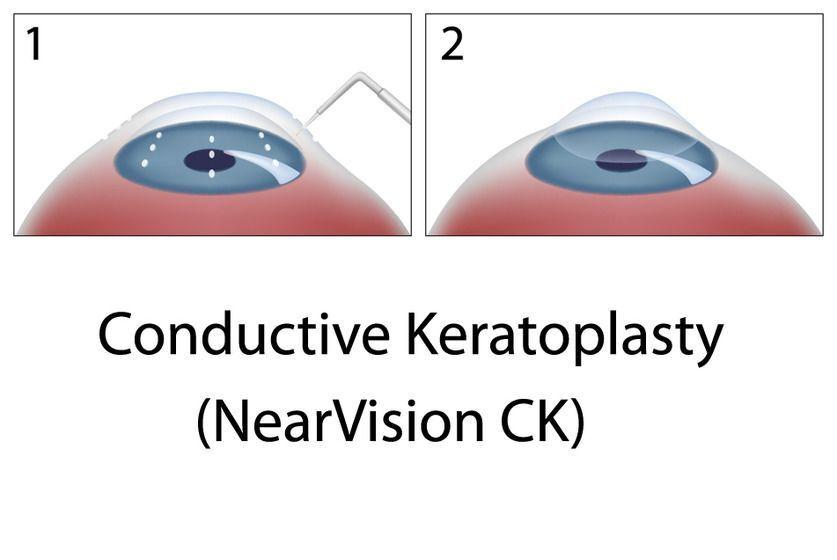 CK eye surgery, Conductive Keratoplasty