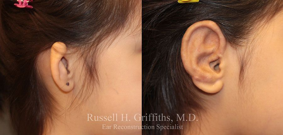 Before and After: One-stage microtia ear reconstruction surgery closeup