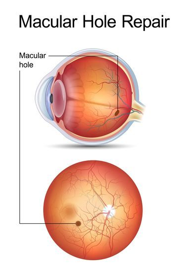 Macular hole in the eye.