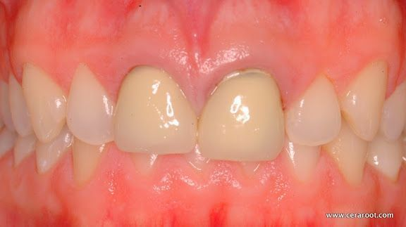 Traditional implant patient