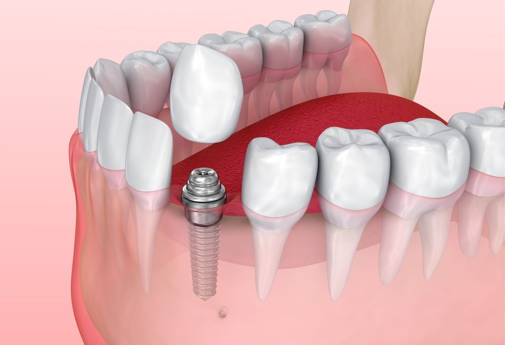 Illustration of an implant-supported crown.