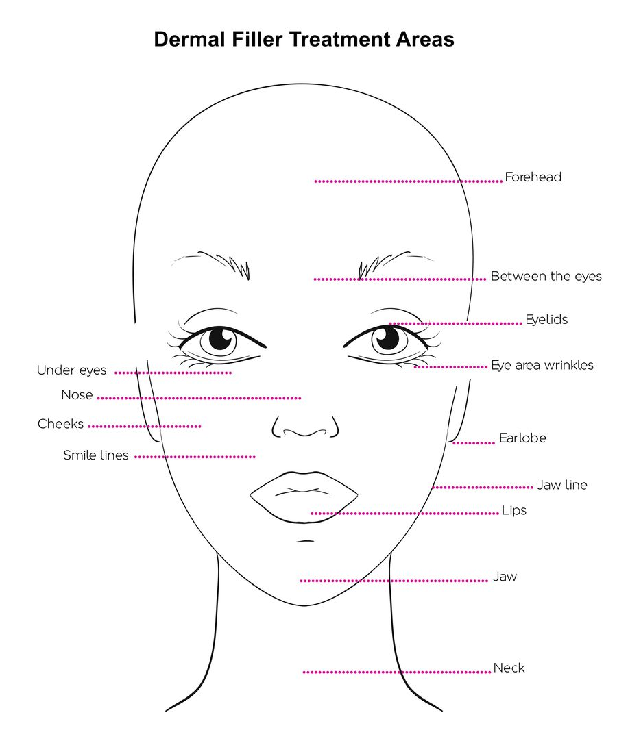illustration of areas treatable with dermal fillers