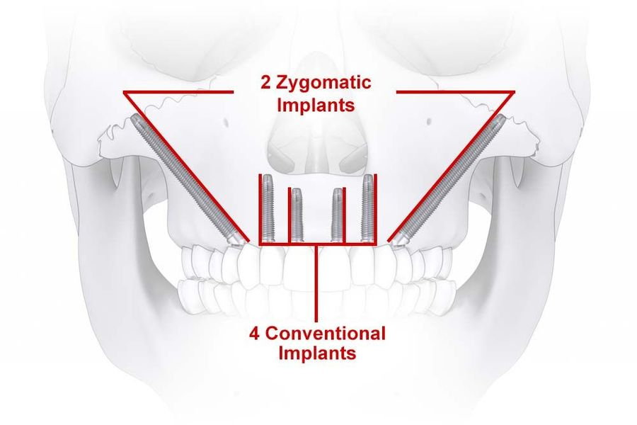 Illustration of zygomatic implants in place