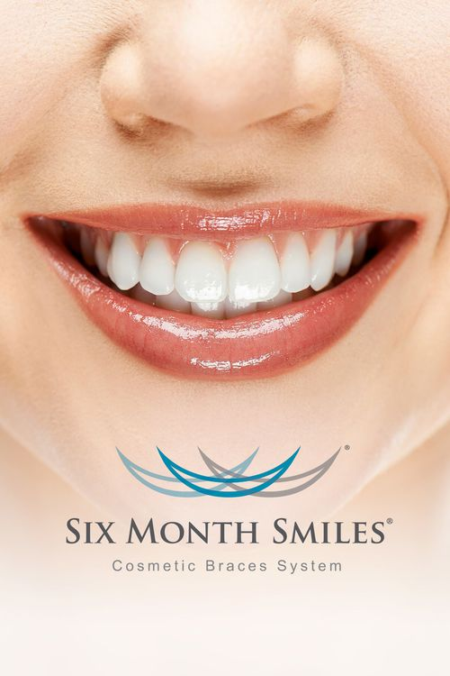 Six Month Smiles® marketing image.