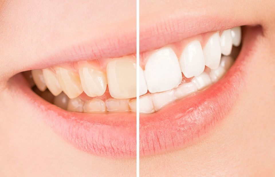 before and after teeth whitening