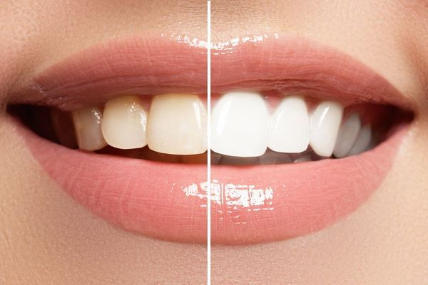 Before and after images of patient's smile after teeth whitening.