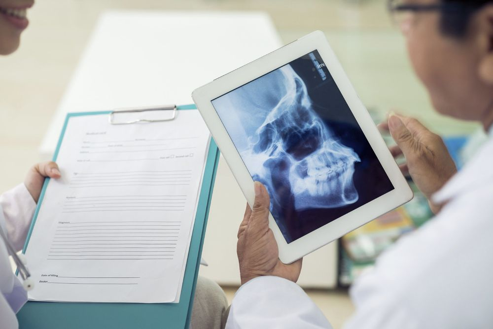 A doctor reviewing a dental x-ray.