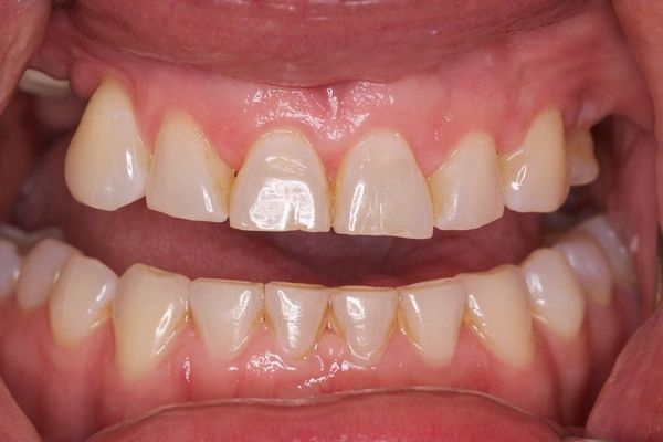 Before Dental Implants photo