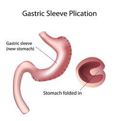 gastric sleeve plication