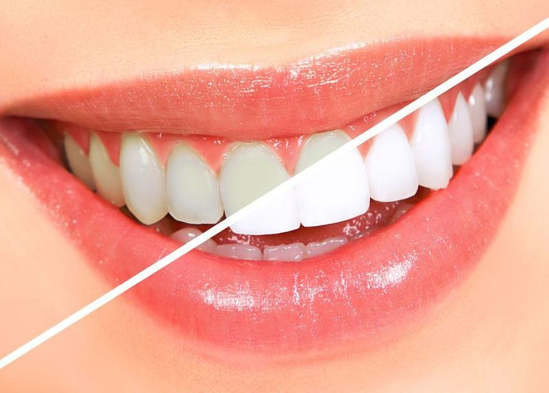 An image that shows what the teeth may look like after whitening treatment