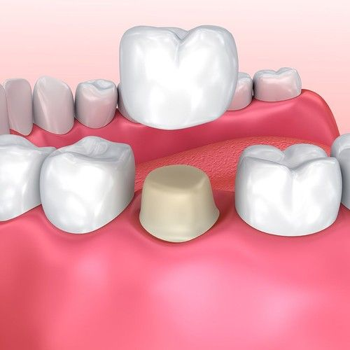 Illustration of porcelain dental crowns.