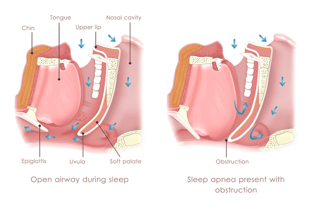 Illustration of anatomy with and without obstructive sleep apnea