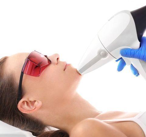Woman undergoing laser resurfacing