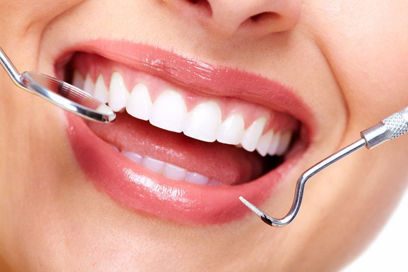 Photo of a smile with dental tools