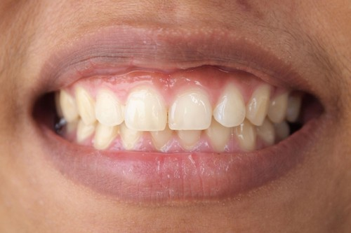 Close up of gum contouring patient's smile