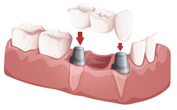 Image of restoration of dental implant
