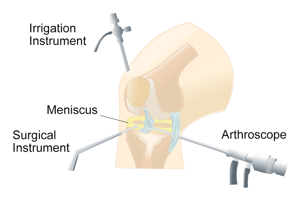 illustration of arthroscopic meniscus surgery