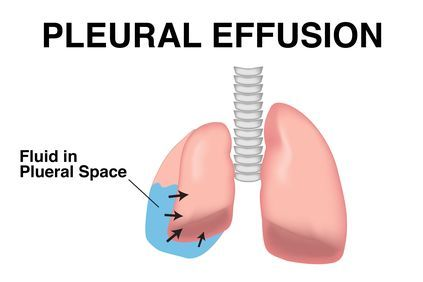 Illustration showing results of pleural effusion