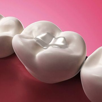 3D graphic demonstrating placement of filling during general dentistry procedure