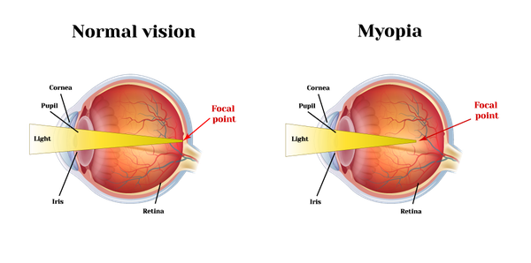 Illustration of normal eye versus myopia