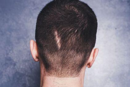 scalp scar