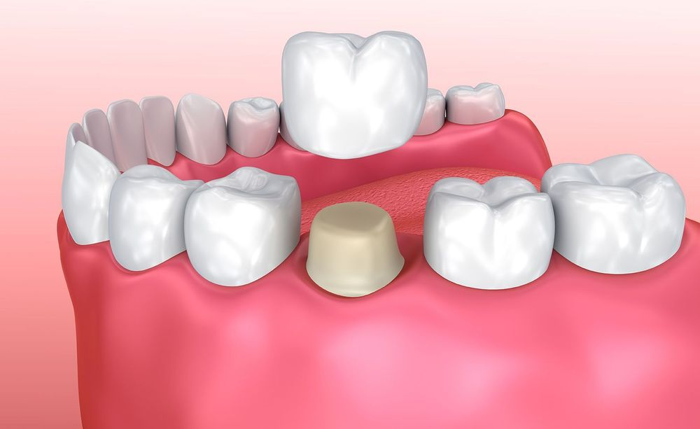 Graphic demonstrating how crowns fit over teeth.