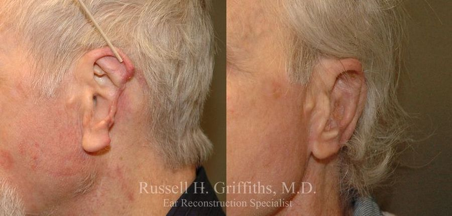 Older man with ear damage before and after surgery