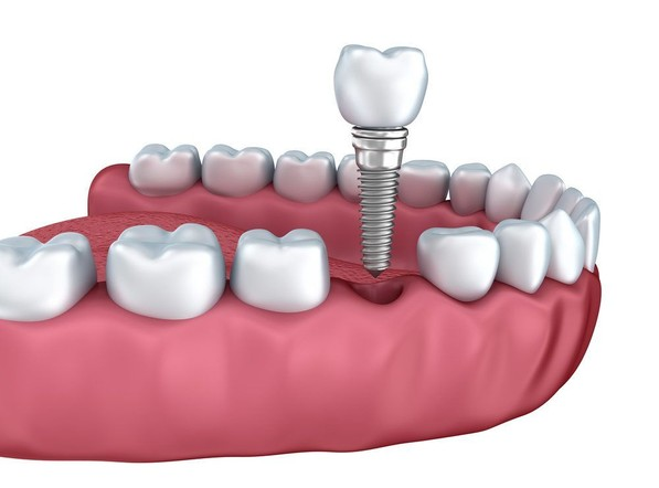 Illustration of a dental implant with a crown going into a hole in the jaw