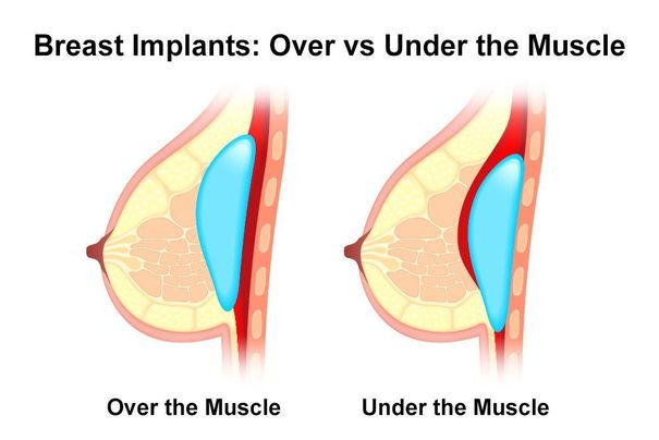 Illustration of a breast implant in place