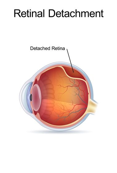 Illustration of a detached retina.