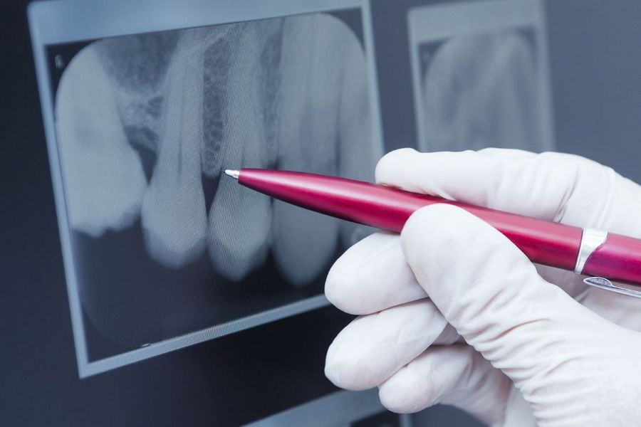 A pen pointing at tooth roots on a dental x-ray