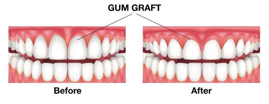Gum graft