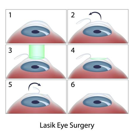 Diagram showing steps of LASIK surgery