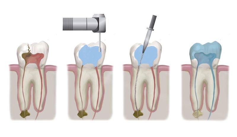 Illustration of the root canal therapy process.
